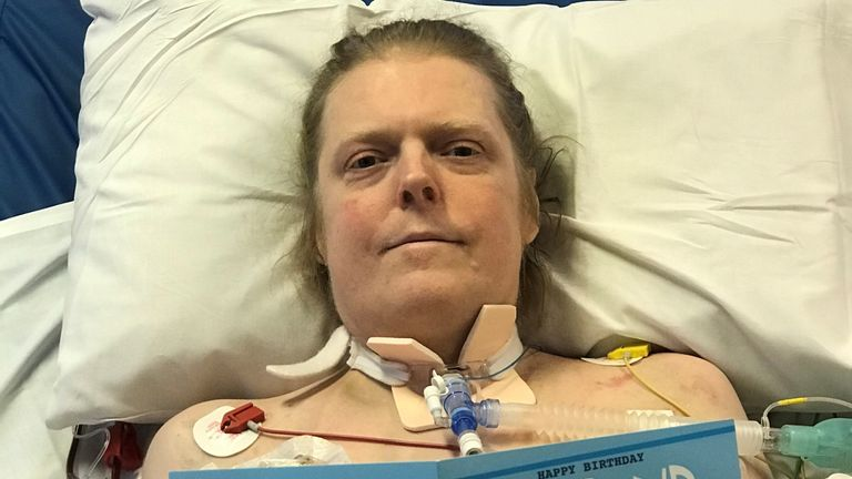 UK's longest-known COVID patient dies after choosing to withdraw from treatment